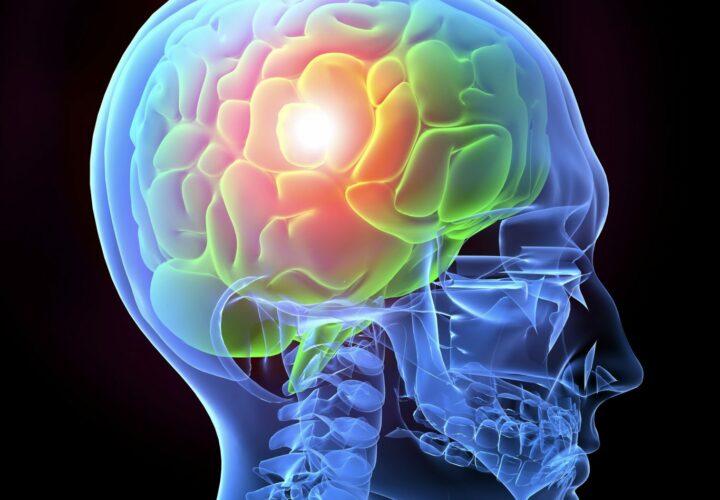 Alzheimer's_brain_inflammation