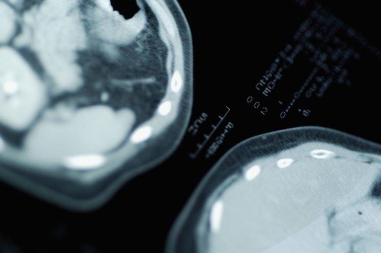 brain-scan-alzheimers-gene
