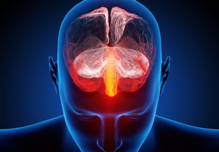 traumatic-brain-injury-and-dementia