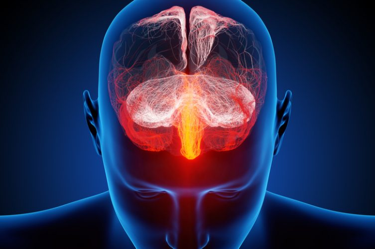 traumatic-brain-injury-and-dementia