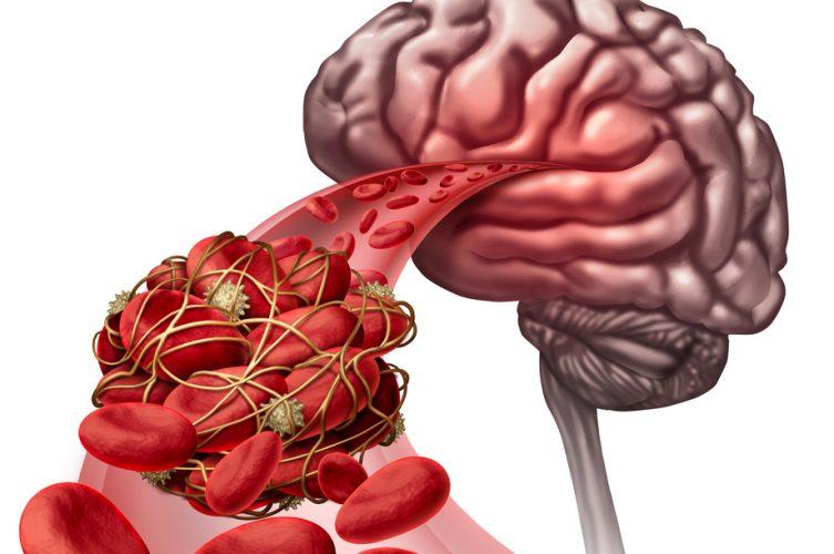 vascular-dementia