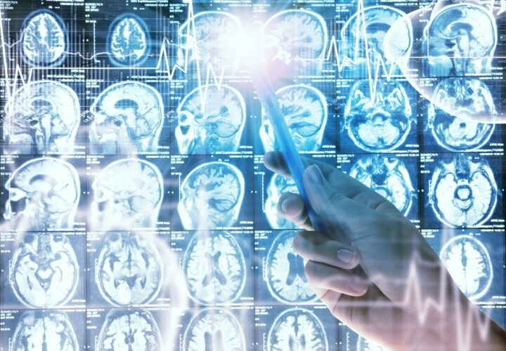 brain-scan-alzheimers