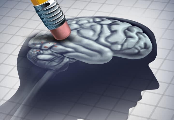 forgetful-dementia