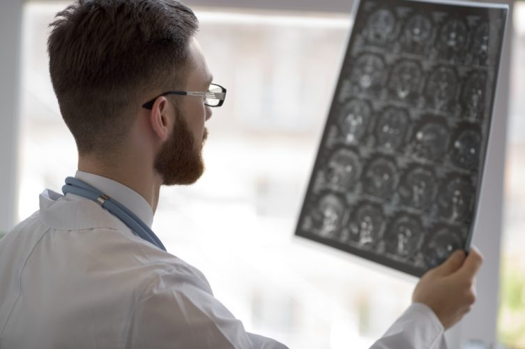 early-detection-alzheimers