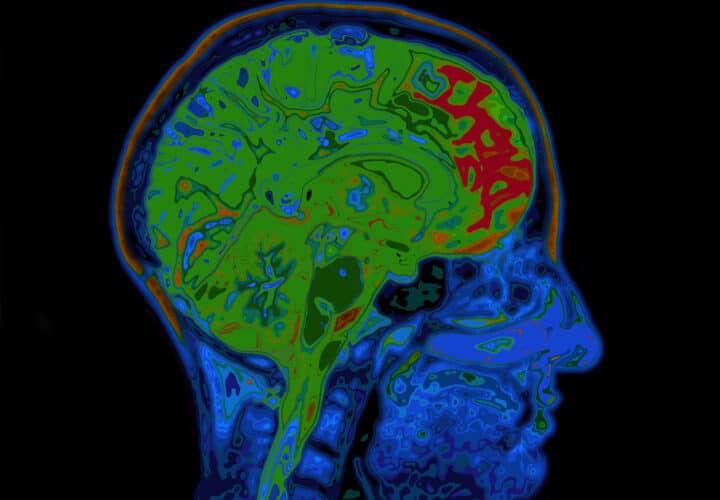 stroke-dementia
