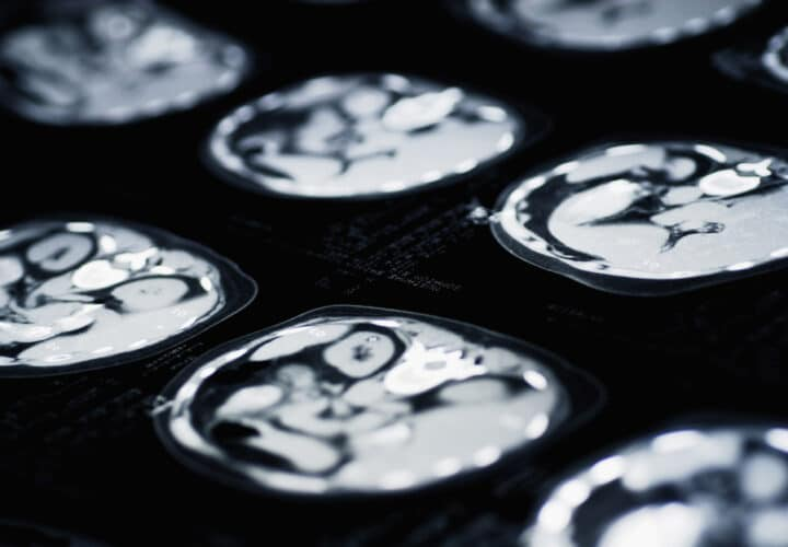 clinical-trial-for-alzheimers