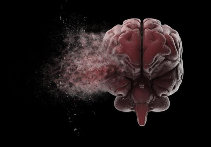personality-dementia