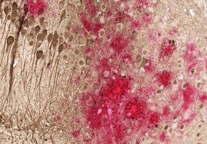 Alzheimers-vaccine