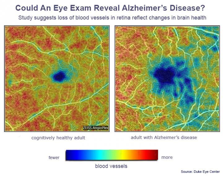 alzheimers-eye-test
