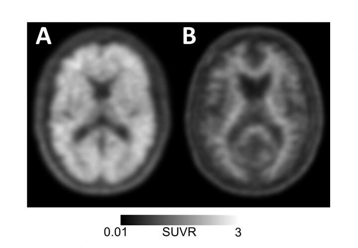 amyloid-pet-scan