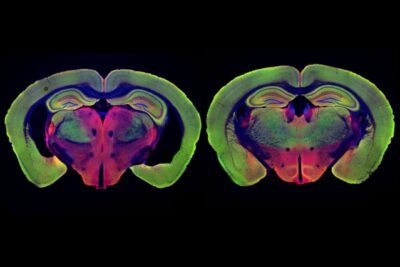 brain scans of mice treated with gamma light therapy