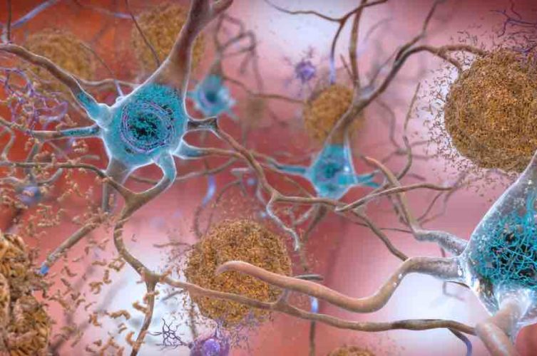 tau tangles and beta amyloid in brain