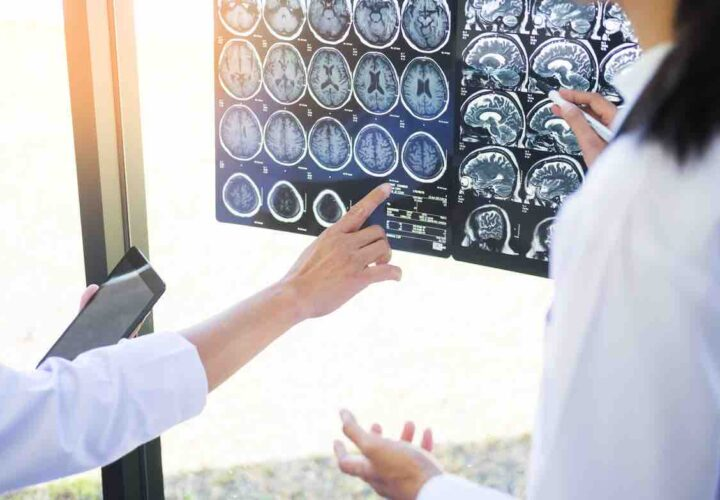 two researchers look at brain scans for amyloid plaques a sign of alzheimer's