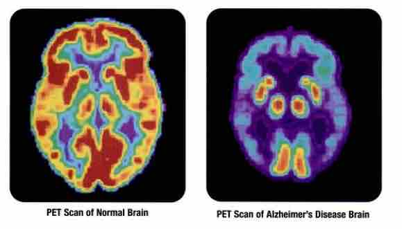 pet scan of brain with alzheimer's