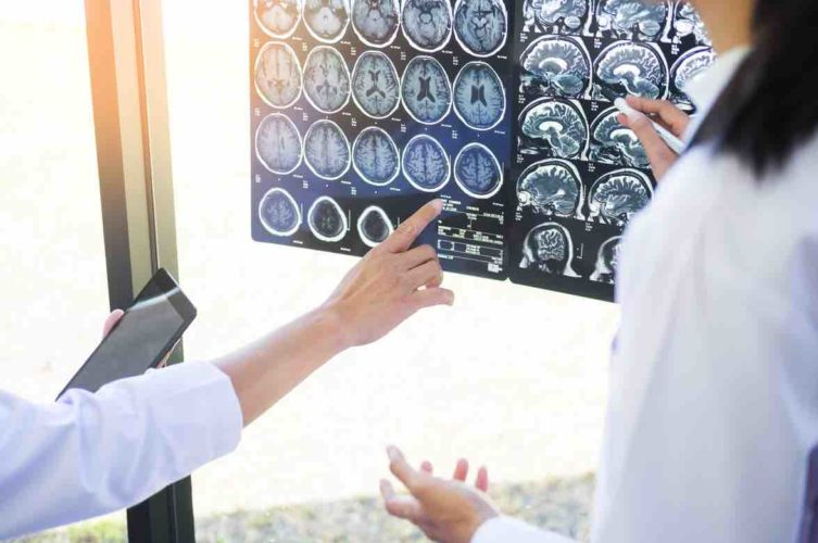 Two doctors analyzing a scan or x-ray film or explains a CT scan together with serious thoughtful expressions method with patient treatment results on brain to an anomaly on the film