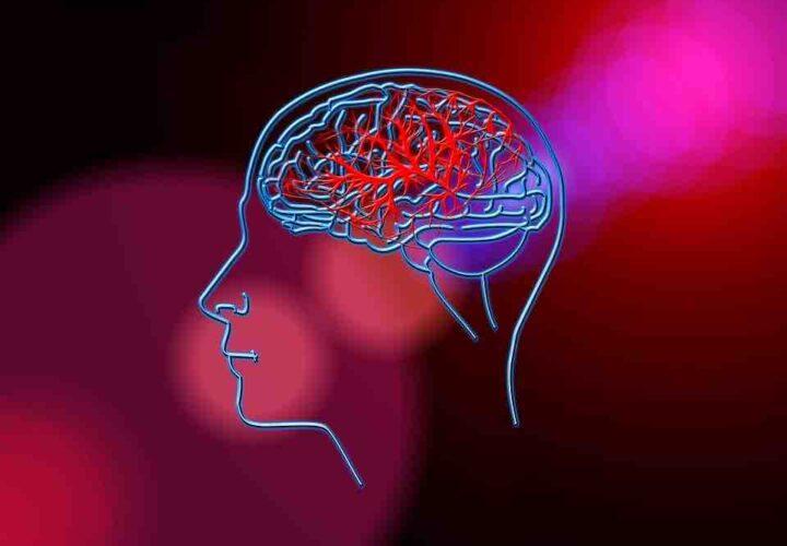 image of stroke vascular system in brain