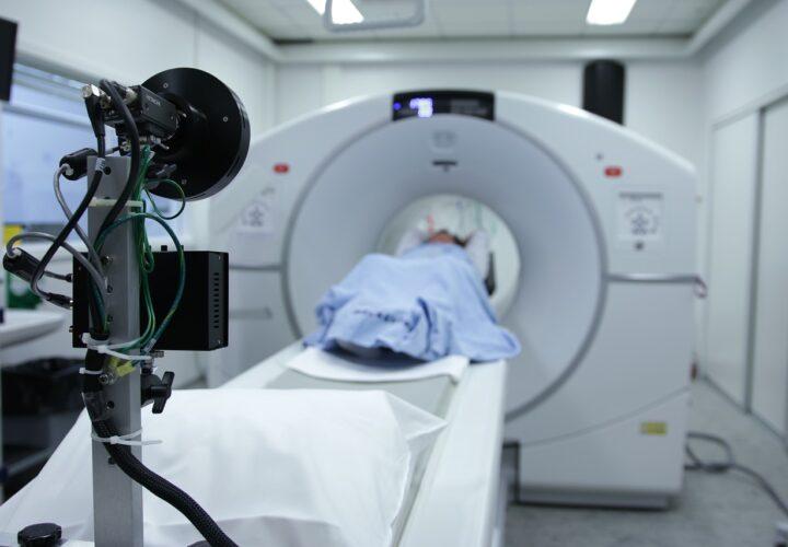 Alzheimer's PET scan