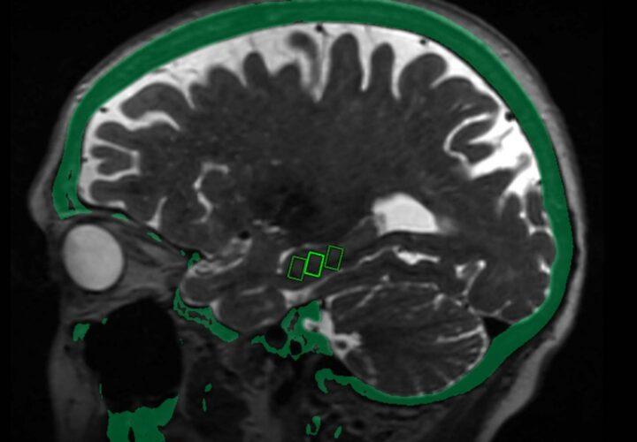 ultrasound alzheimers genetic variant