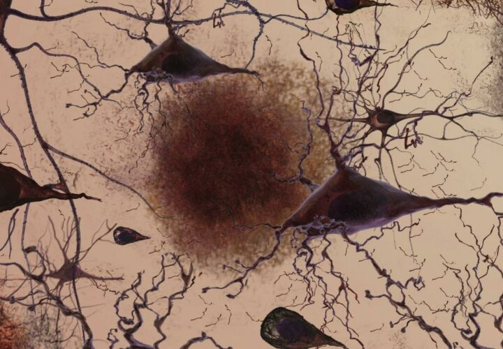 Eli Lilly Alzheimer's drug Biogen Seeks FDA approval