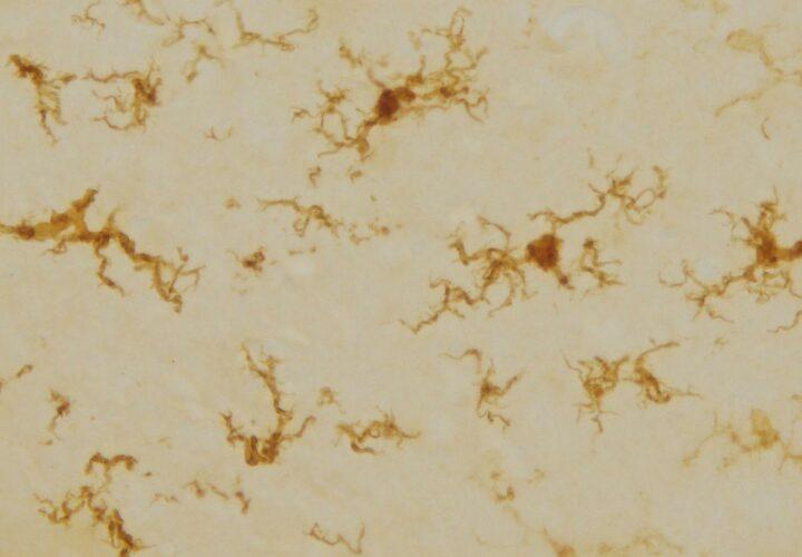 Alzheimer's immune