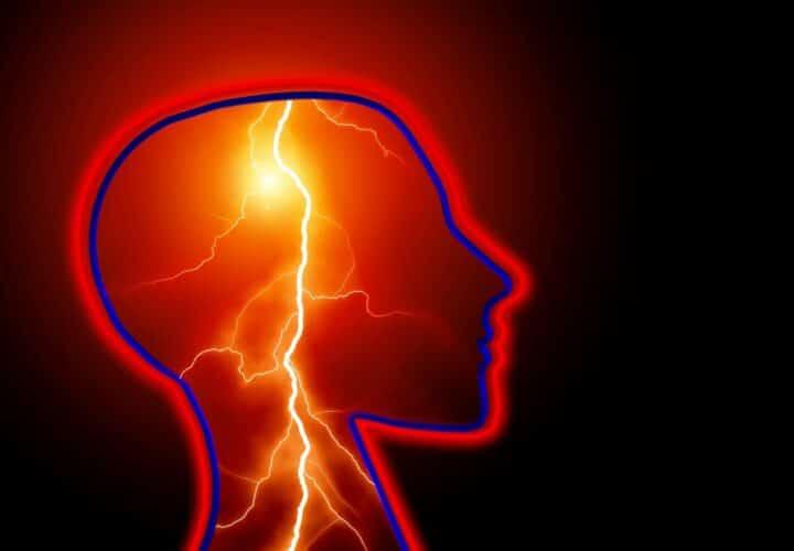 Alzheimer's stroke