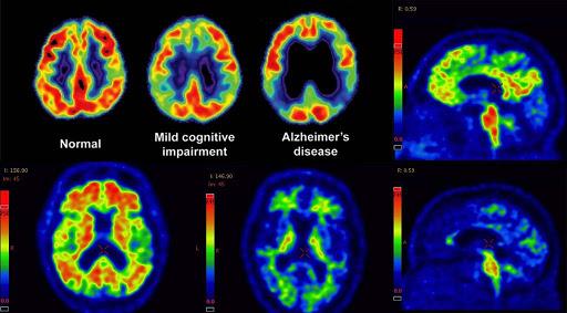 incorrect alzheimer's diagnosis