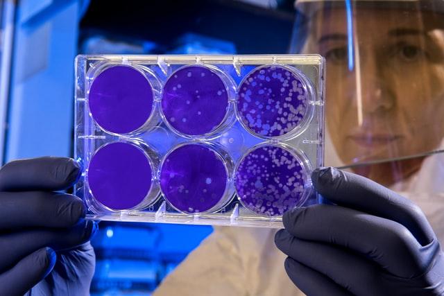 coronavirus caused a surge in alzheimer's deaths
