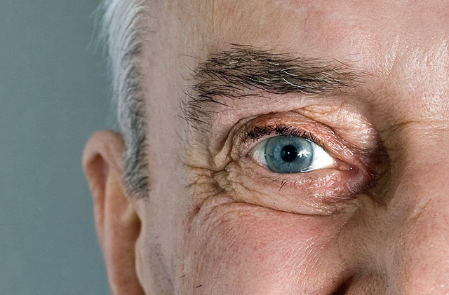 Alzheimer's Biomarker in the eye