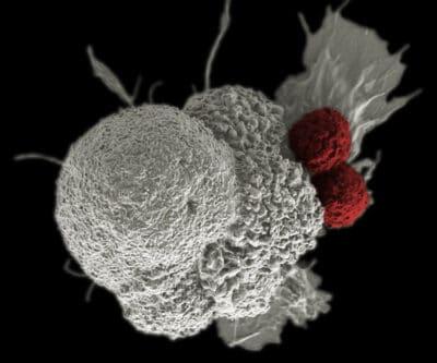 immunotherapy Alzheimer's