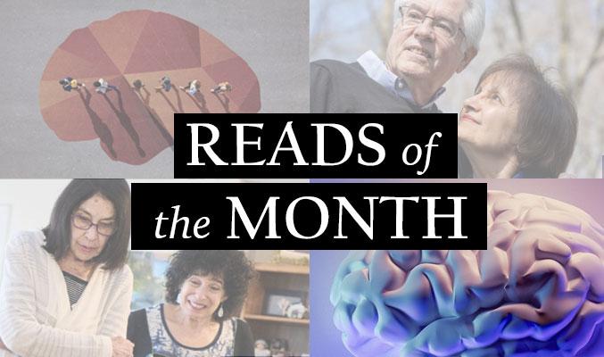 alzheimer's reads