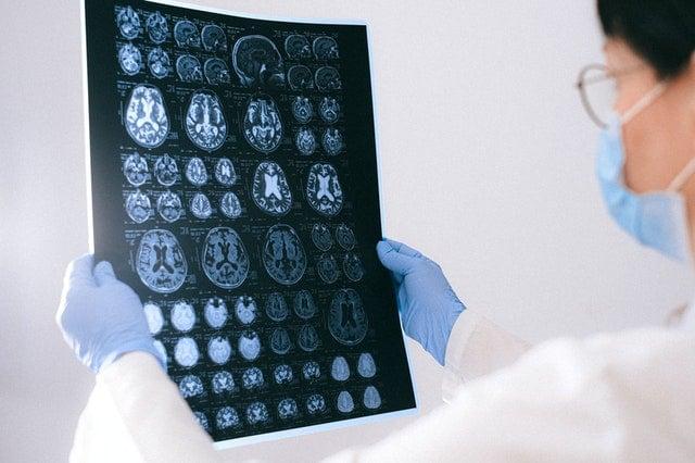who should take biogen alzheimer's drug aduhelm?